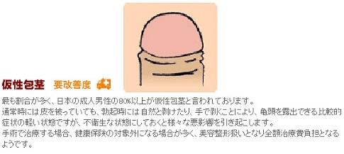 仮性包茎の図