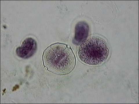 Neutrophil Under Microscope 400x