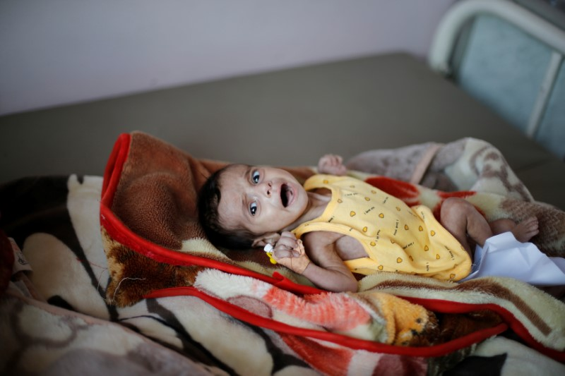 A malnourished child cries as it lies on a bed at the malnutrition ward of al-Sabeen hospital in Sanaa, Yemen September 11, 2018. Picture taken September 11, 2018. REUTERS/Khaled Abdullah