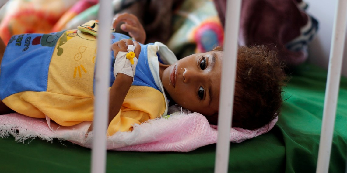FILE PHOTO: A malnourished boy lies on a bed at a malnutrition treatment center in Sanaa, Yemen October 7, 2018. REUTERS/Khaled Abdullah
