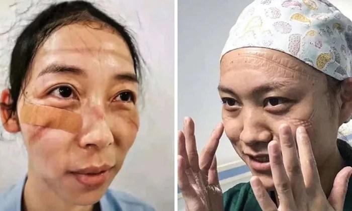 Coronavírus Enfermeiras chinesas chamadas de heroínas ficam com feridas pelas máscaras - Coronavírus: Enfermeiras chinesas chamadas de heroínas ficam com feridas pelas máscaras
