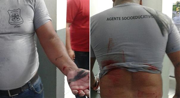 Agente ferido após queda de portão