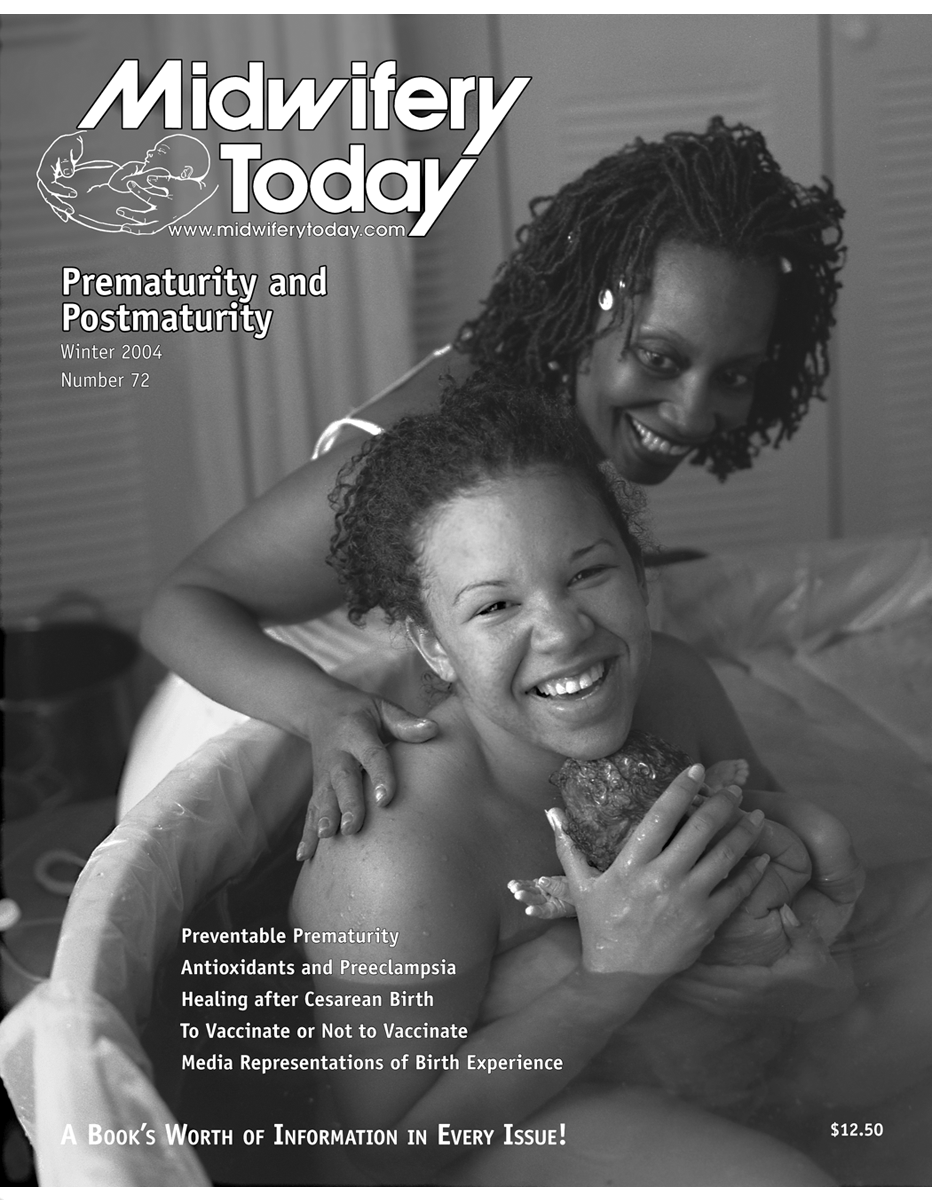 Midwifery Today Issue 72