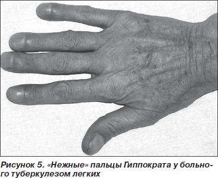 Symptom fingers drumsticks  Hippocratic nails - what is it