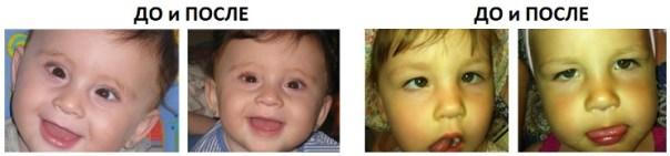 Фотографии детей после операции по коррекции косоглазия