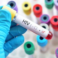 INFORMED CONSENT is a must! Nothing else will do because someone in our industry is HIV+