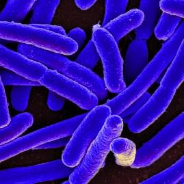 E. coli (Quelle: Helmholtz-Zentrum für Infektionsforschung)