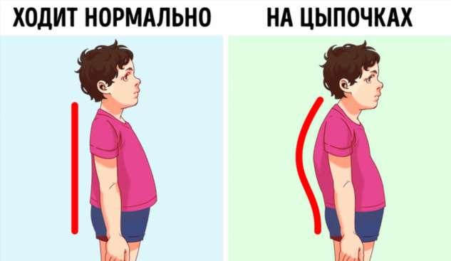 Что означает, если ребенок постоянно ходит на цыпочках