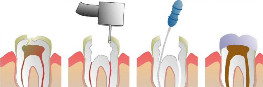 fresno vancouver root canal