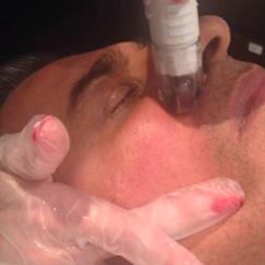 Skin Needling men