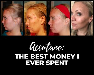 Accutane: The Best Money I Ever Spent | Millennials with Meaning