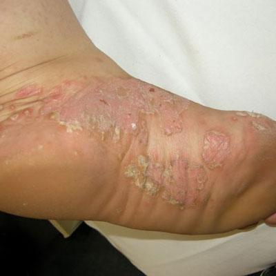 Psoriasis – Miller Family Dermatology