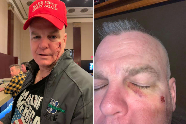 """Retired NYPD Detective Speaks About The Night He Was Attacked For Wearing """"Make Fifty Great Again"""" Hat"""