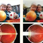Don't let cataracts cloud your ability to see life to the fullest