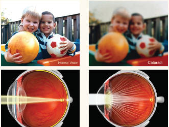 normal-vision-vs-cataracts-illustration-examples