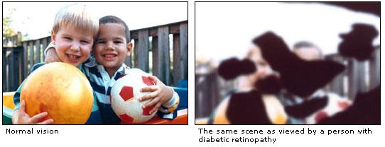 Diabetic--2 versions of boys