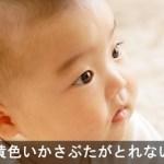赤ちゃんの脂漏性湿疹は生後5ケ月には治る!?アトピーとの違いとオイルの効果