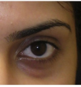 How to Prevent and Treat Dark Circles Under the Eyes