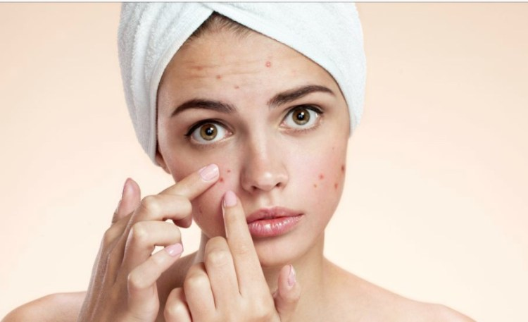 SKIN PROBLEMS DURING PREGNANCY
