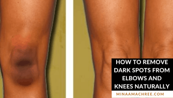 How To Remove Dark Spots From Elbows And Knees Naturally