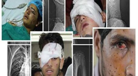 Transplantasi Mata Tidak Bisa Bantu Semua Korban Pelet di Kashmir