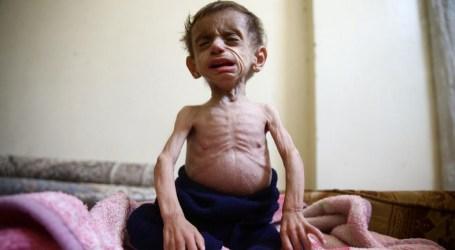 Survei PBB: Warga Suriah Terkepung Makan Sampah, Pingsan Kelaparan