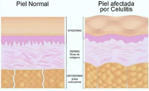 Formación de celulitis