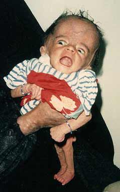 DU baby born to Gulf War Vet