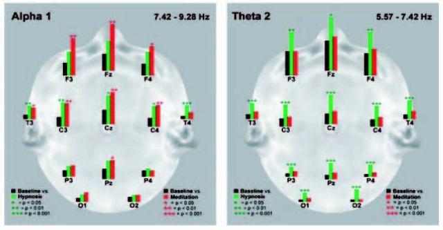 Различия между гипнозом и медитацией