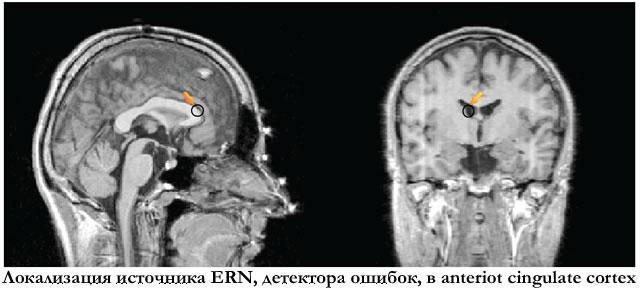 Локализация источника ERN