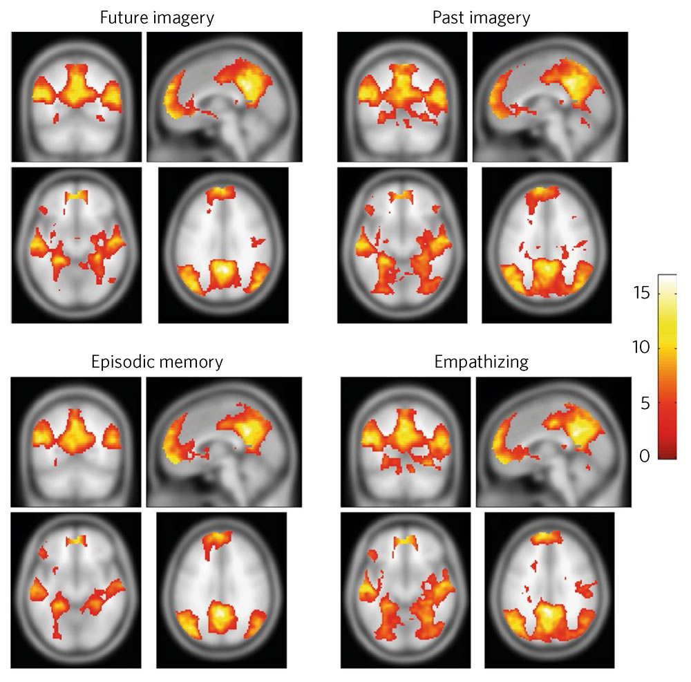 Default mode network - DMN
