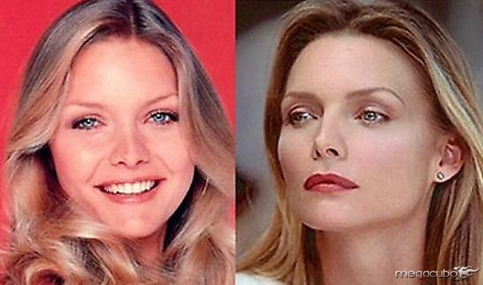michelle pfieffer Before After