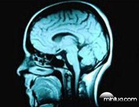 Cientistas-desenvolvem-técnica-para-ler-pensamentos
