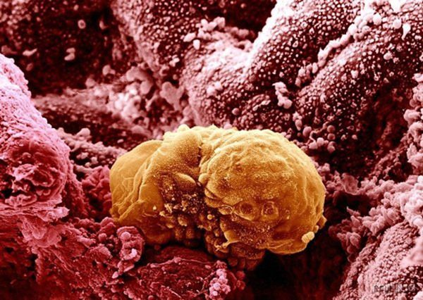 embrião-6-dias