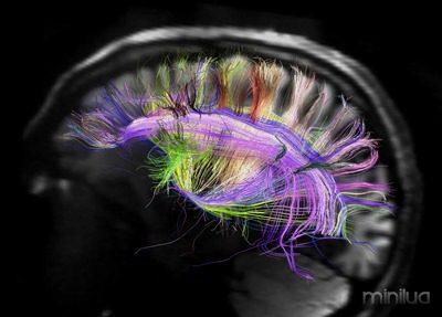 rainbow-brain-map-science-aaas