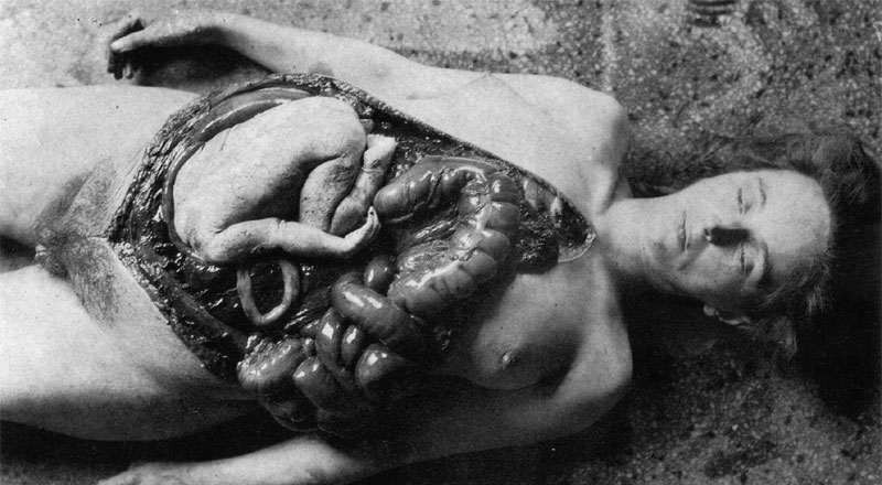 a-vivisection-of-the-pregnant-womanat-the-unit-731-this-pregnant-young-woman-was-infected-with-syphilis-for-to-study-the-efficiency-of-the-new-japanese-antibiotic-terramycin-on-the-infe