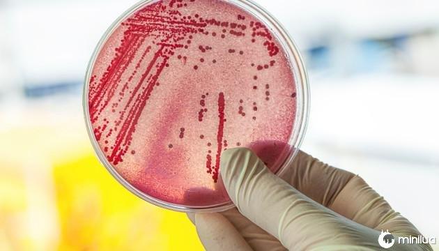 troca de sabão bacteriana 3