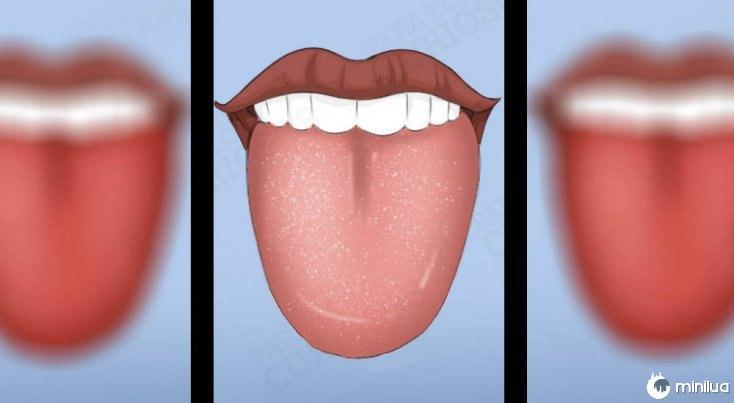 Os sintomas pálido colorido língua