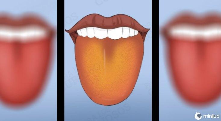 Os sintomas língua camada de cor amarela