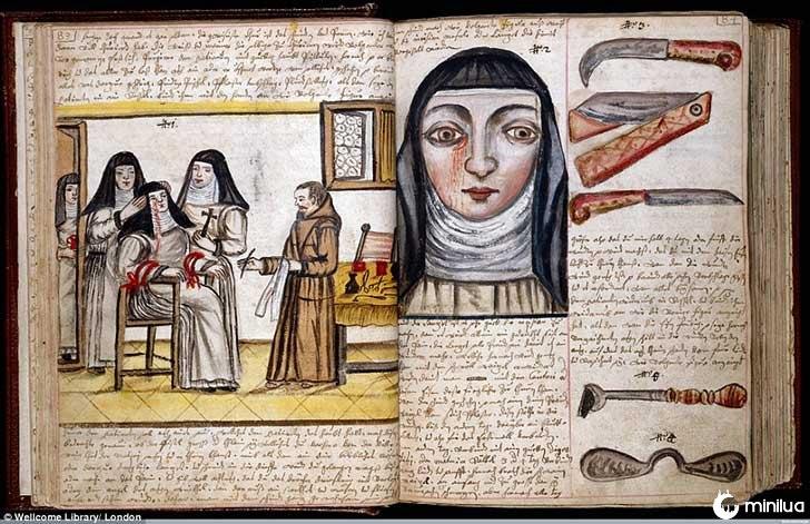 século barbara cirurgia 19 10