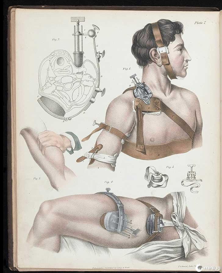 século barbara cirurgia 19 11
