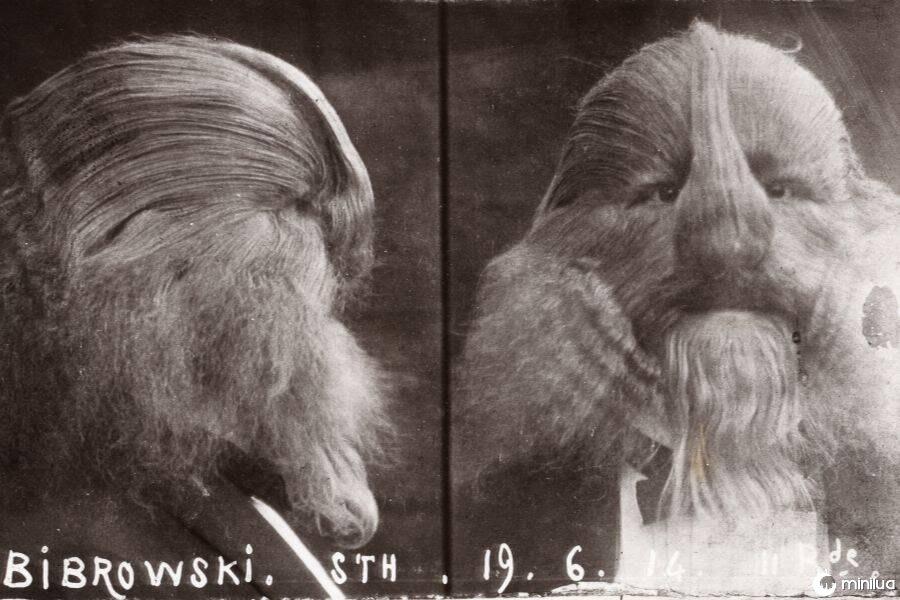 A verdadeira história de Lionel o homem com cara de leão | Minilua