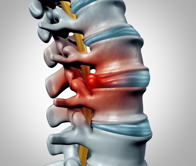 How Do I Heal My Moderate Herniated Disc At L S Minnesota Spine Institute