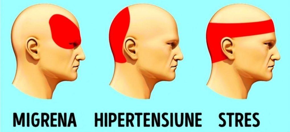 Dureri de cap la tâmple și ochi, cauze și modalități de tratare