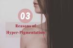 Top 3 Reasons of Hyper-Pigmentation