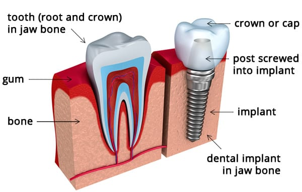 Dental Implants to Solve Problems with Tooth Decay, Injury or Gum Disease