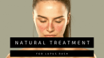 Natural Treatment for Lupus Rash