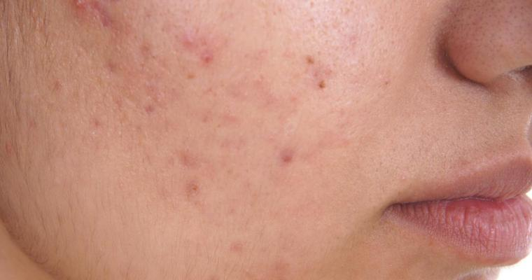 How to Get Rid of Acne: 6+ Fast Ways