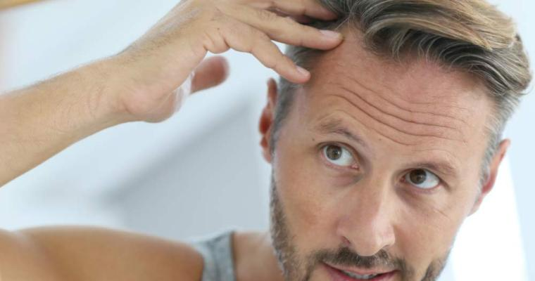 How Genetics Can be an Important Factor for Major Hair Loss in Men?