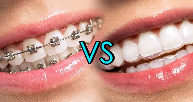 Invisalign Pros and Cons: Could Braces Be a Better Option?